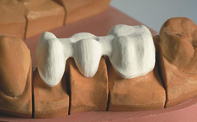 All on four corone ponti Brindisi Protesi fissa Centro Dentistico San Lorenzo Brindisi